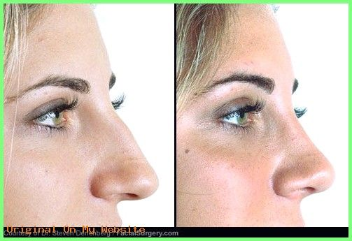 Rhinoplasty Before And After | See before and after pictures of popular cosmetic surgery proc…