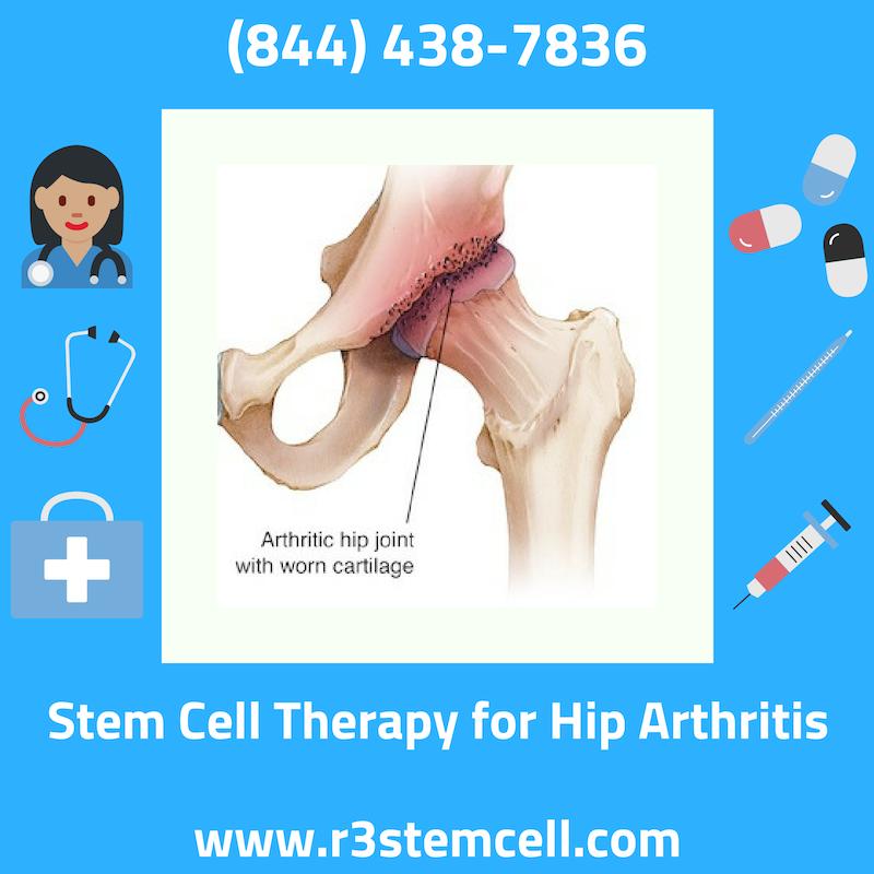 Stem Cells Is On The Leading Edge Of Regenerative Medicine Houston United States Which Includes Stem Cell Therapy For With Images Stem Cell Therapy Arthritis Stem Cells