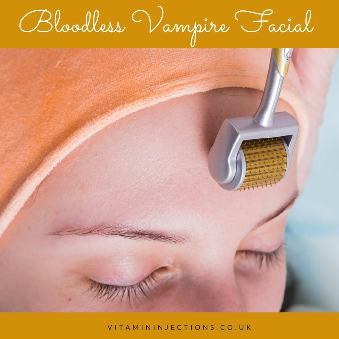 Get ready for valentines day 2017 and treat yourself to a bloodless get ready for valentines day 2017 and treat yourself to a bloodless vampire facial this solutioingenieria Images
