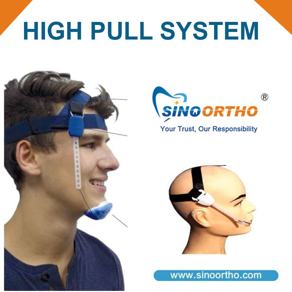Orthodontic #highpullsystem - A high pull headgear is usually used ...