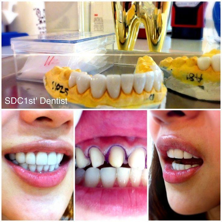 Abrasive Dental Surgery Recovery Wisdom Teeth Removal