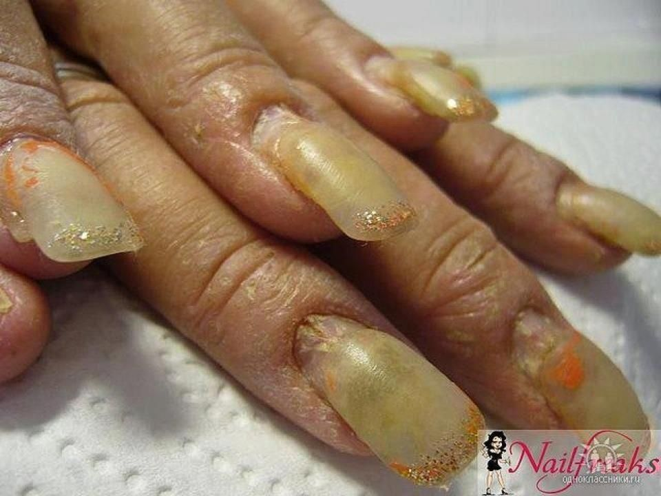 Pin by Rachel gribble on Nail Conditions | Pinterest | Nail conditions