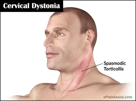 Info on facial dystonia