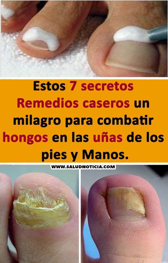 remedio para curar los hongos de las uñas de las manos