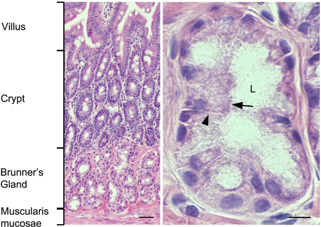 Duodenum Histology | Human Physiology & Anatomy | Pinterest