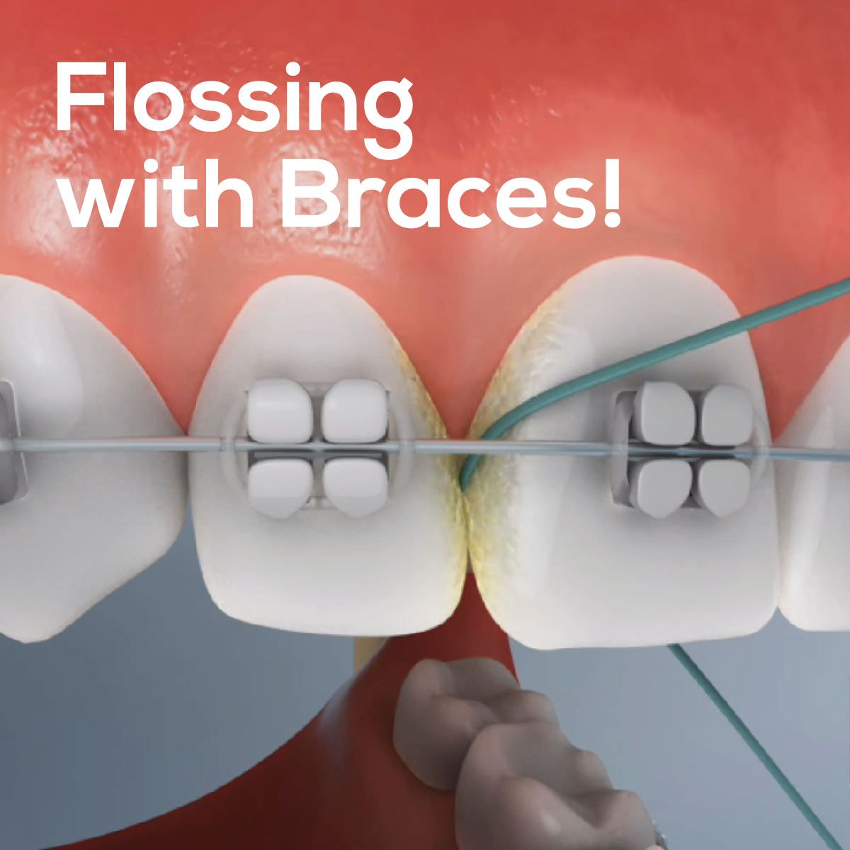 FLOSSING WITH BRACES can be challenging and is a little