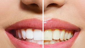 10 remedios naturales para acabar con los dientes amarillos