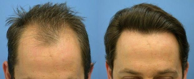 Hair Transplant Procedure The Most Effective Method For Treating