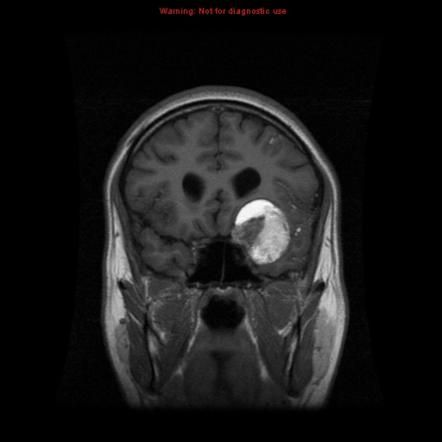 Intracranial dermoid cyst | Radiology Reference Article