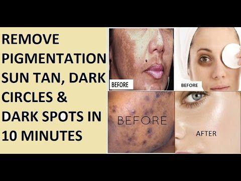 7070eb8600027d02d7749b29fc264012 - How To Get Rid Of Sun Tan On Brown Skin