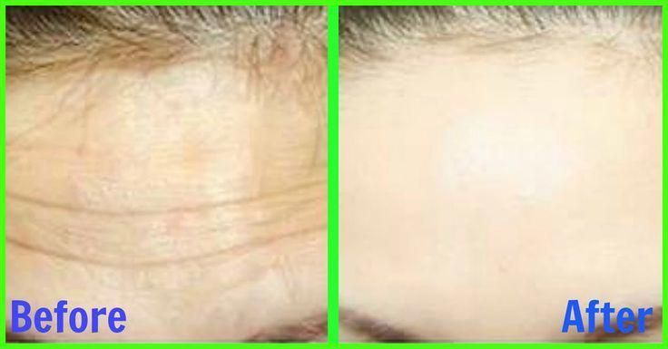 how to get rid of textured skin on forehead