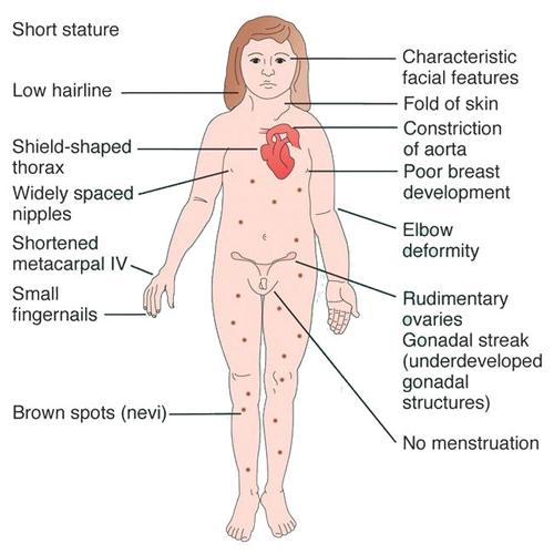 Girls with xxy chromosomes
