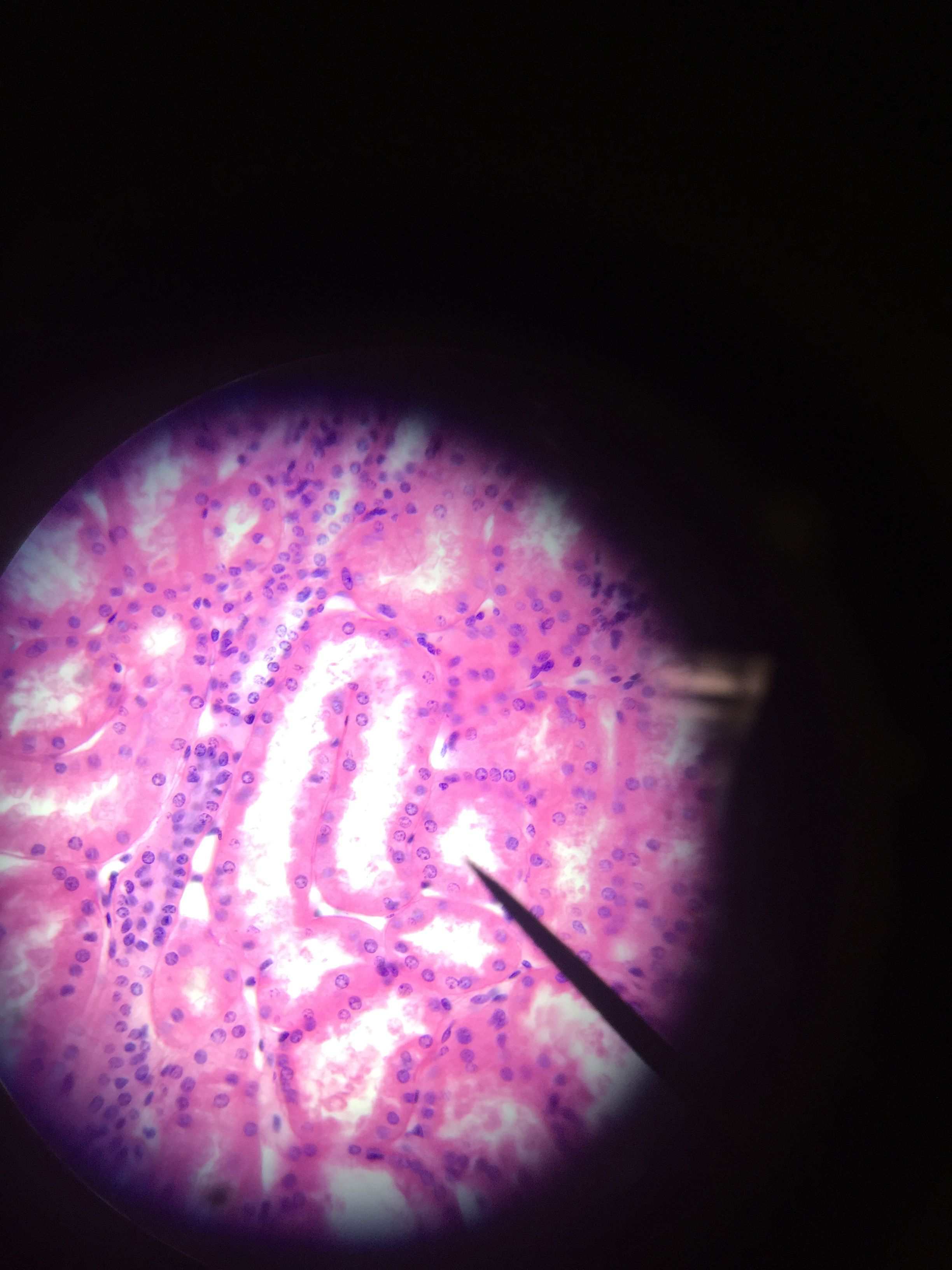 PCT - pointer on microvilli