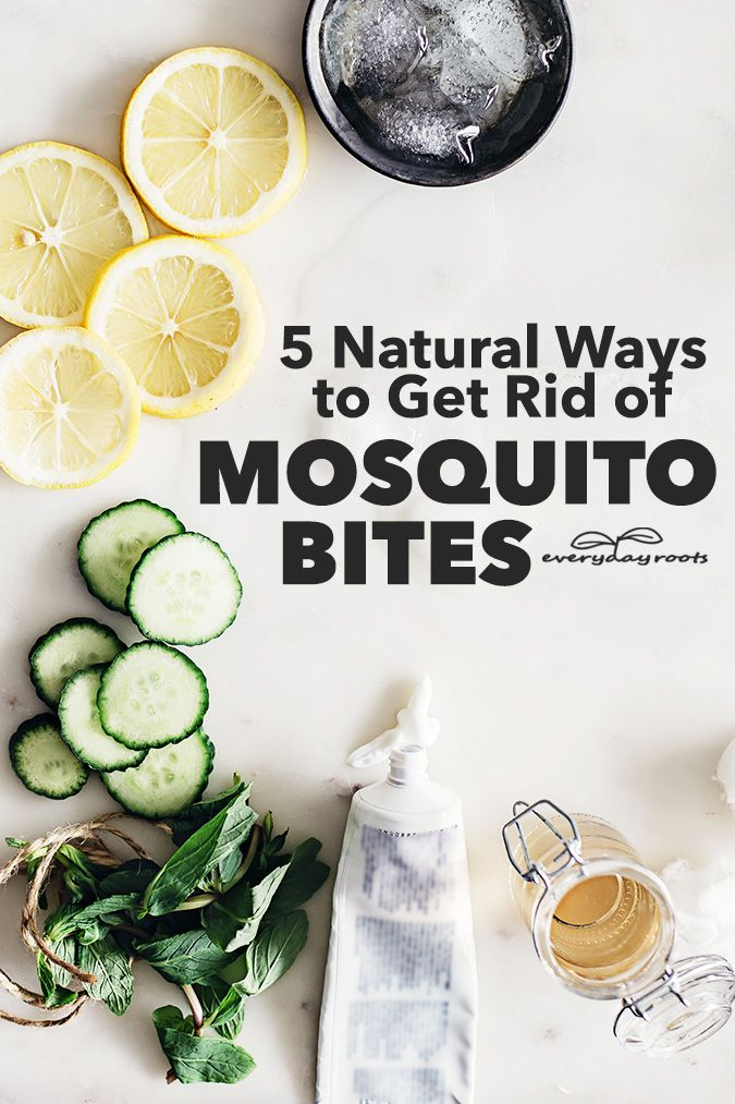 how to get rid of mosquito itch