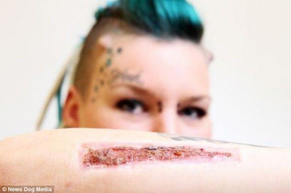 Mulher remove tatuagem com bisturi para se vingar de ex namorado