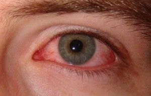 How To Get Rid Of Pink Eye In 24 Hours