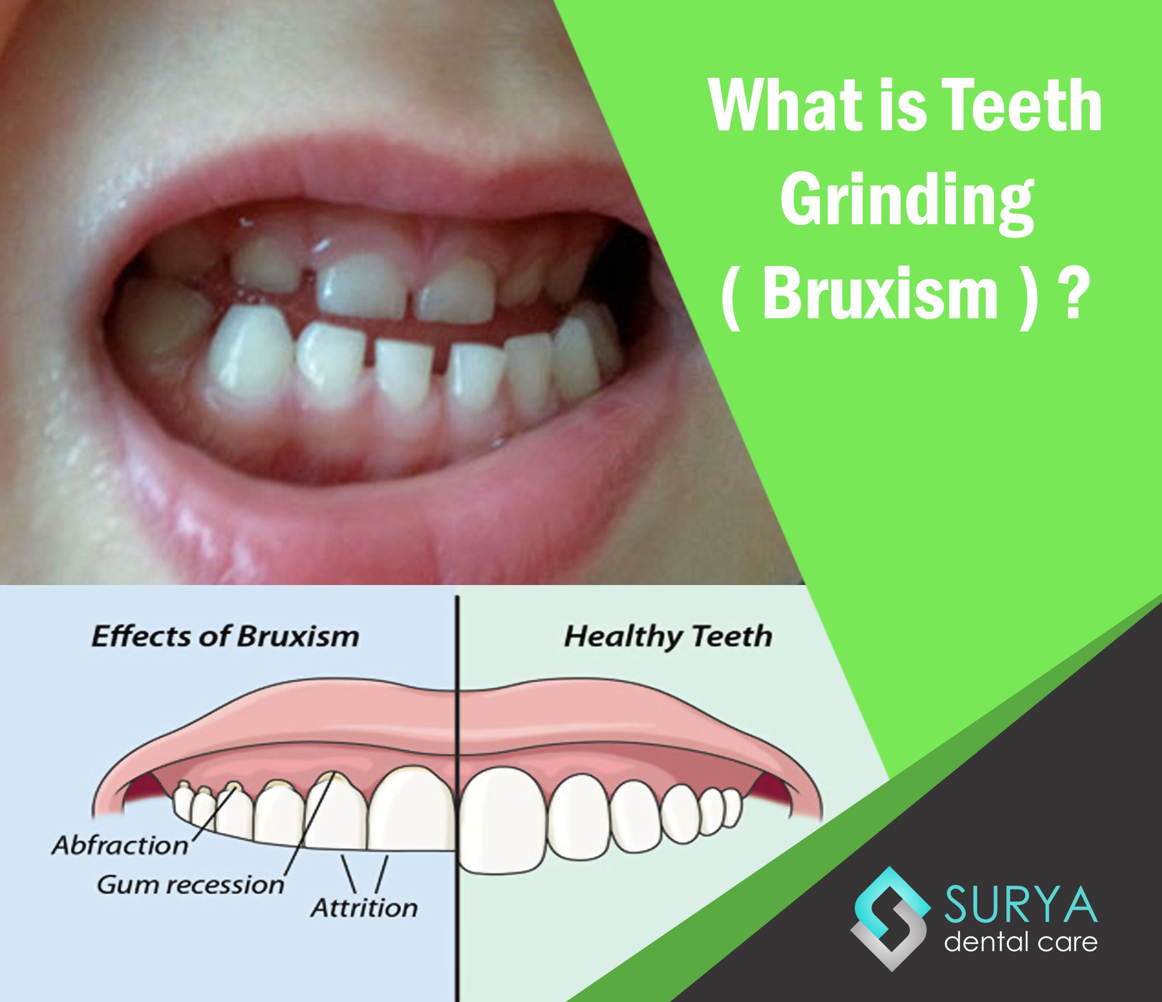 Bruxism The Poor Oral Habit Of Grinding And Clenching Teeth While