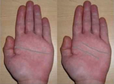 single palmar crease aspergers Single palmar creases usually indicates a problem with development the single palmar crease is more prevalent in individuals with: the single palmer crease.