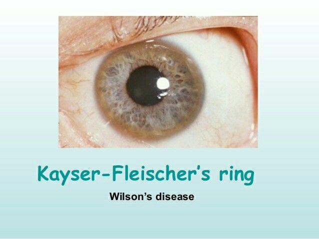 Under L Test Kayser Fleischer Ring Is Evident Around The Border Of Cornea Arrow