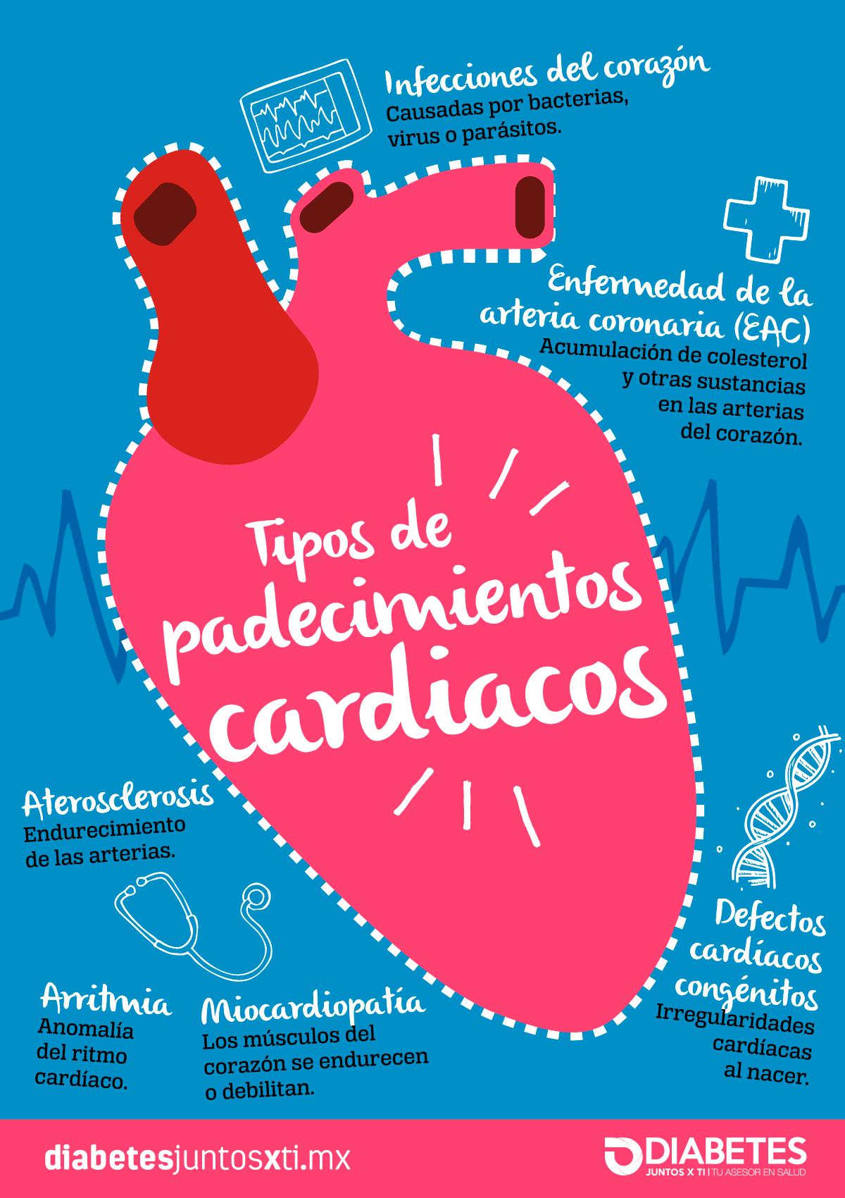 infartos al corazon sintomas de diabetes