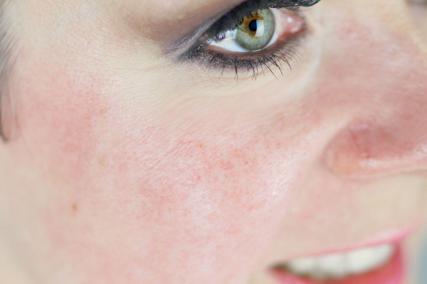 Rosacea Welches Make Up Eignet Sich Bei Rotungen Mit Bildern Rosazea Rotungen Kopfschmerzen