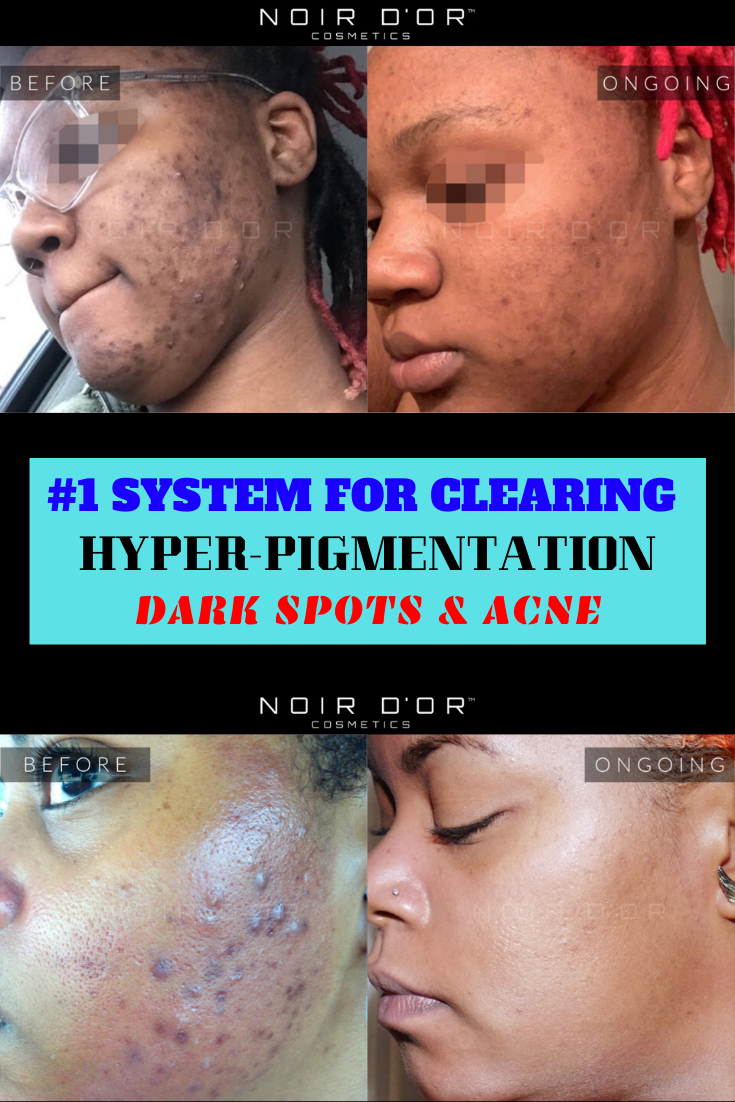 Best Skin Care System In 2020 Skin Care System Face Acne Acne