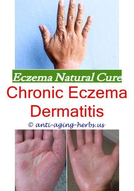 What Causes Chronic Eczema Eczema And Food