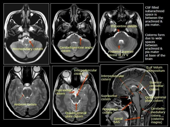 Pin by Heba Ali on Anatomy | Pinterest | Anatomy and Radiology