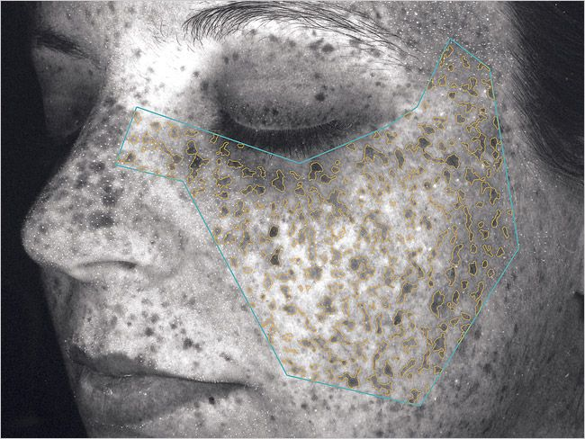 Sun Damage under a Woods Lamp   Skin Care   Pinterest ...