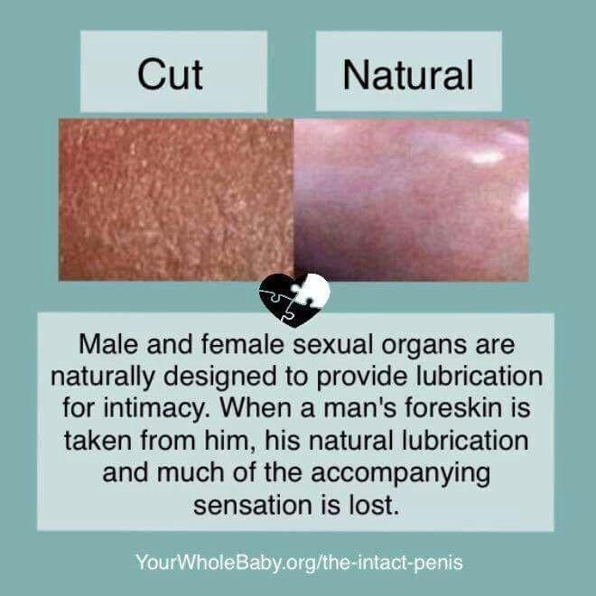 Glans Texture Comparison of Intact verses Circumcised ...