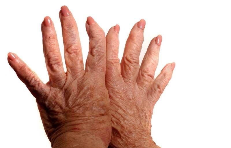 a kézízületek gyulladásos betegségei a térdfájdalom okai éjjel