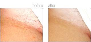 Before And After Bikini Line Laser Hair Removal Bikini Hair