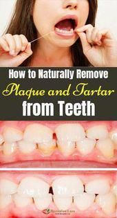The Truth Revealers How to Naturally Remove Plaque and Tartar from Tee