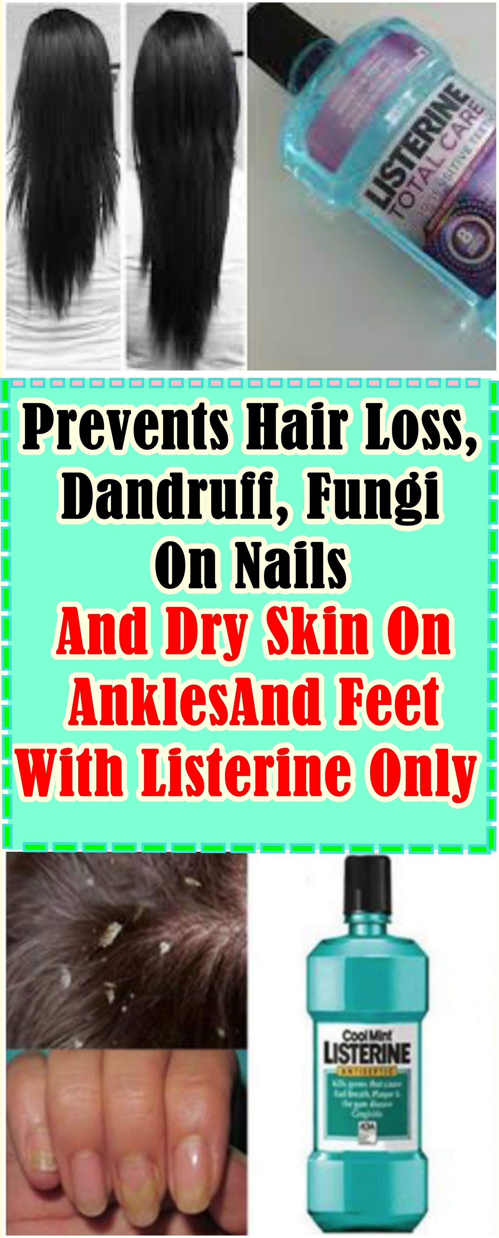 Prevents Hair Loss Dandruff Fungi On Nails And Dry Skin On Ankles