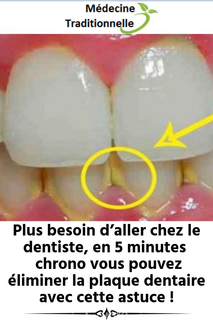 Plus besoin d'aller chez le dentiste, en 5 minutes à plat vous pouvez éliminer ...