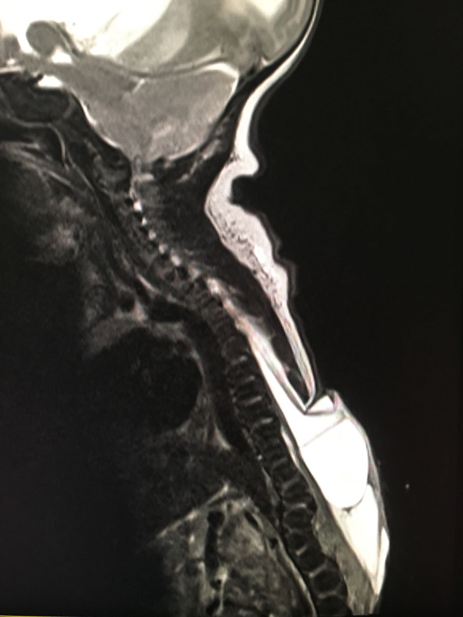 Pin by Pankaj Kaira on Radiology interesting cases and