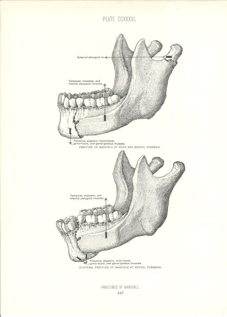 1926 Human Anatomy Print - Bar Fight Broken Jaw - Vintage Antique ...