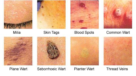 Image result for Important Facts About Skin-Tags