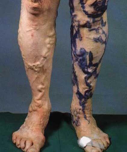 medician varico varism pe picioare