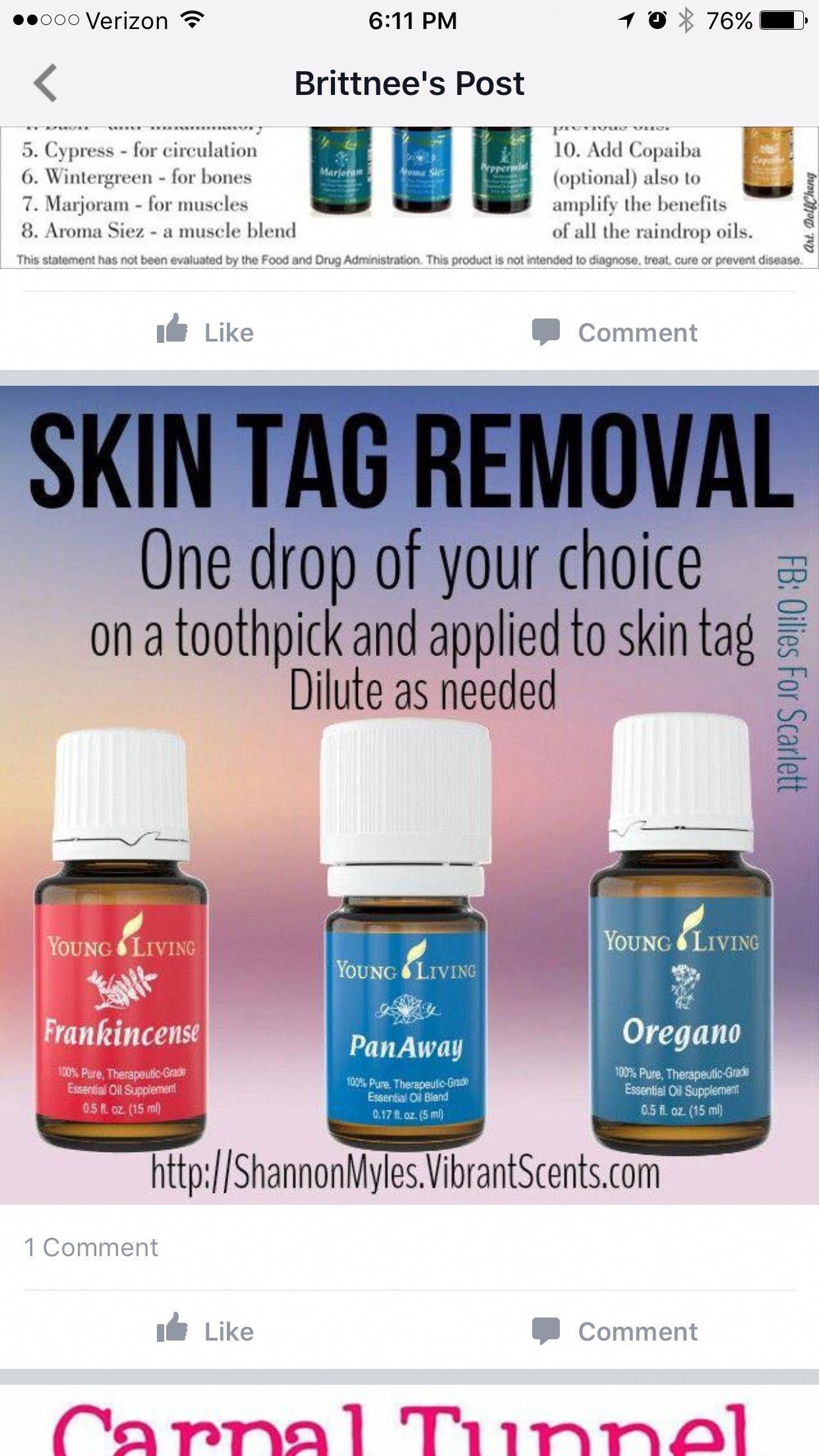 Skin Tags frankincenseessentialoilskin   Essential oils for skin ...