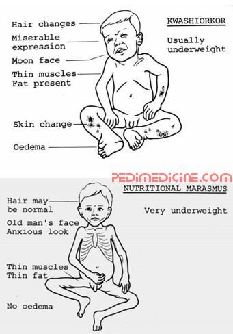 Marasmus And Kwashiorkor Difference Metabolism Pinterest Nutrición