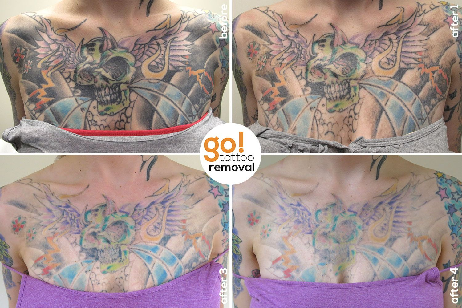 This Large And Heavy Chest Piece Isn T What The Client Wanted For The Rest Of Their Life So A Little Over A Ye Chest Tattoo Removal Tattoo Removal Chest Piece