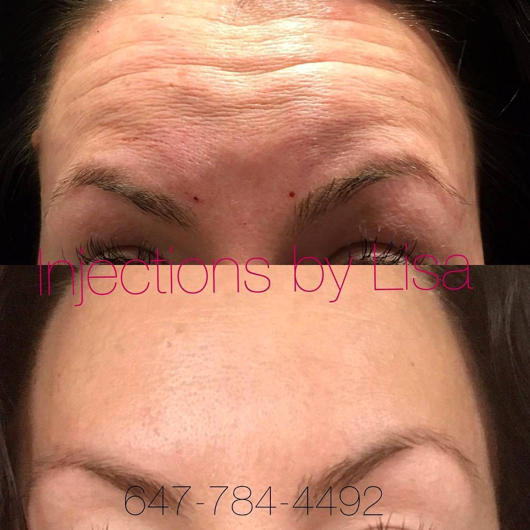 Botox For Forehead Cost  Botox Facelift  Pinterest  Botox