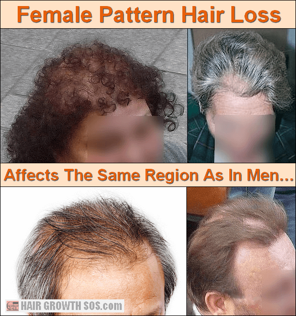 Female Pattern Hair Loss In Women Affects The Same Area As In Men But Usually Causes Thinning Not Baldness Hair Loss Cure Hair Loss Remedies Hair Growth Tips
