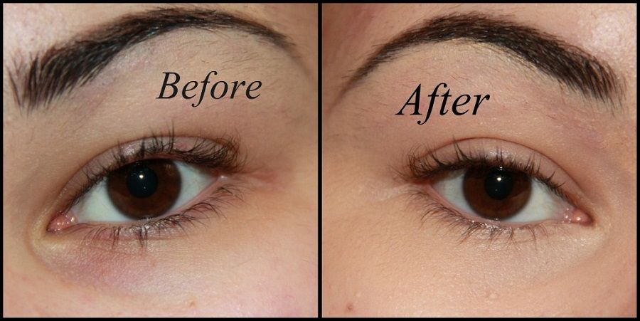 how to fix deep set under eyes