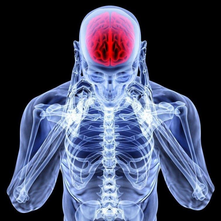 dolor de cabeza - cefalea