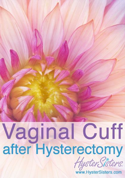 sex drive after hysterectomy surgery