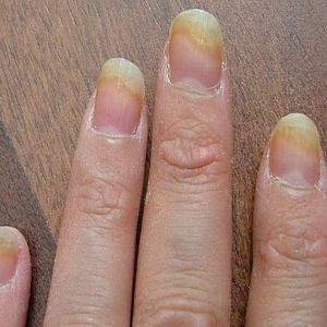 Top 8 Nail Fungus Cure - Natural Ways To Get Rid Of Nail Fungus ...
