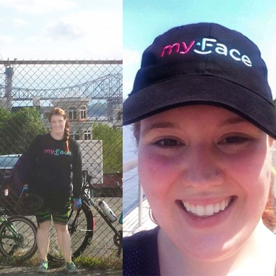 Savannah, our Development and Events Manager at myFace, launched a #campaign called 'myFace bikes' in #support of our patients and their families. Her goal is to raise $500 in a month and she will bike 1 mile for every $10 donated. With your help, she can complete her goal.   Thinking of joining her team to raise money for a cause? This challenge is open to everyone. To #donate or join, please visit: crowdrise.com/myface-bikes  #fundraise #getinvolved #rideforacause #socialgood #dogoodtogeth