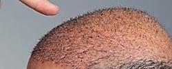 """Método simple """"regenera"""" el cabello (Pruebe a la noche)"""
